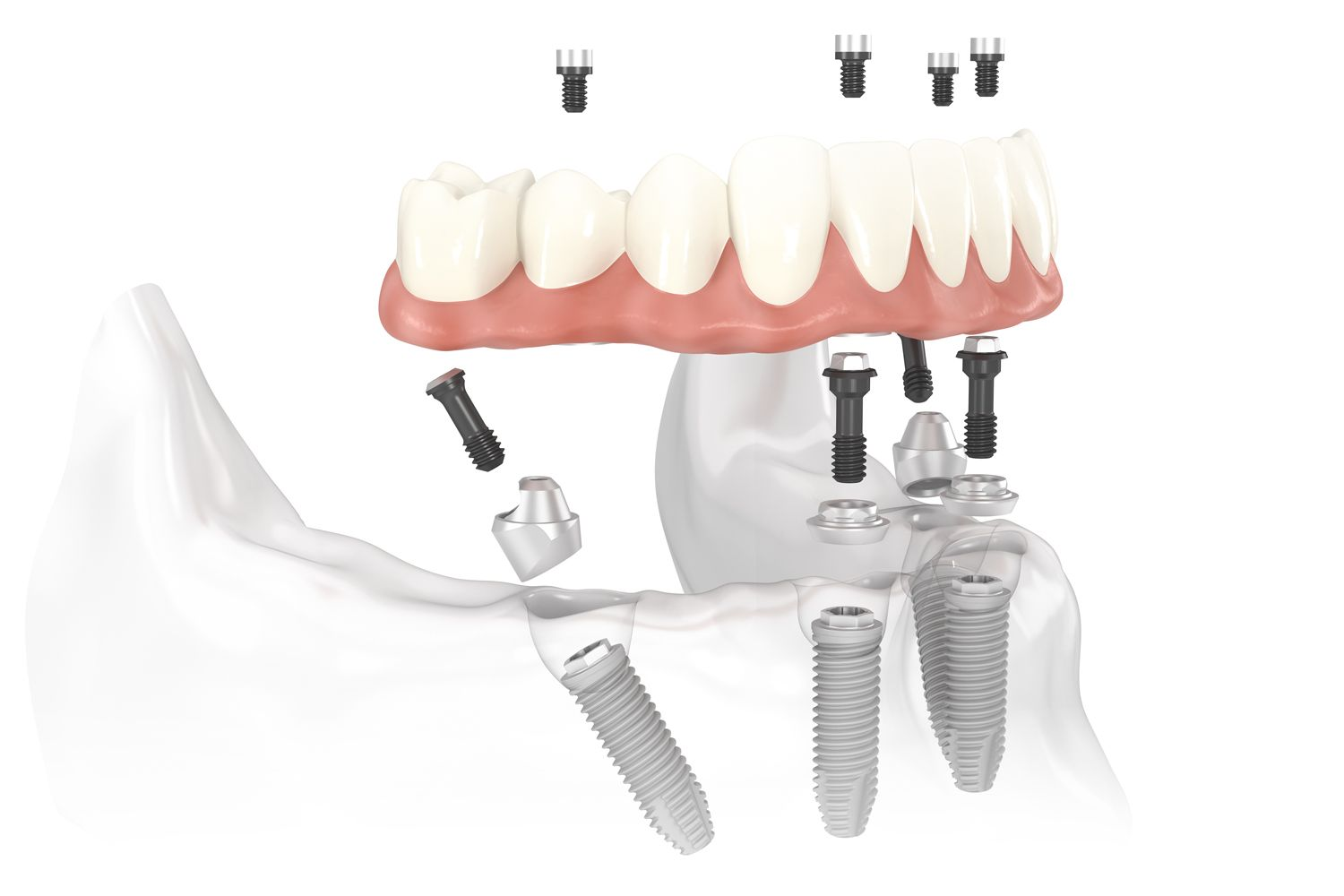 Mandibular All-on-4 dental implants tilted 45°