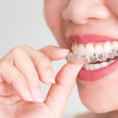 Certified invisalign dentist in Mexico