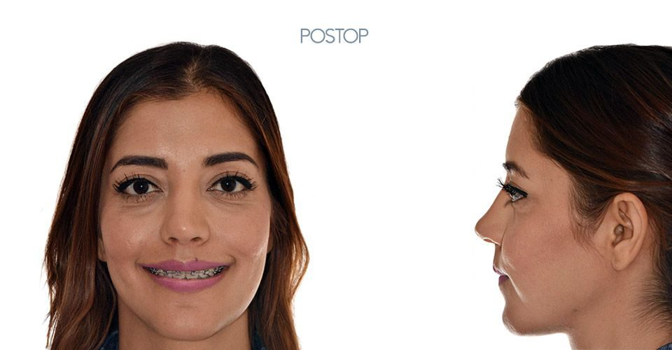 Postop orthognathic surgery case woman