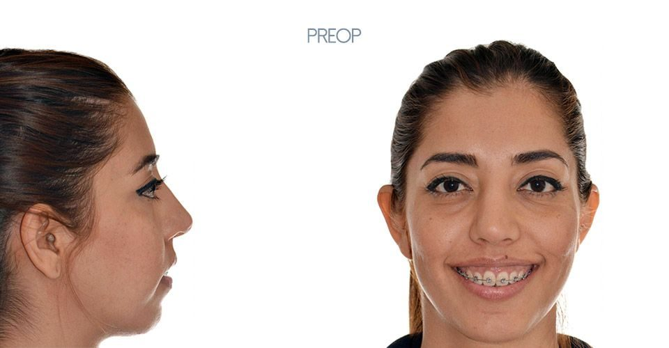 Preop orthognathic surgery case woman