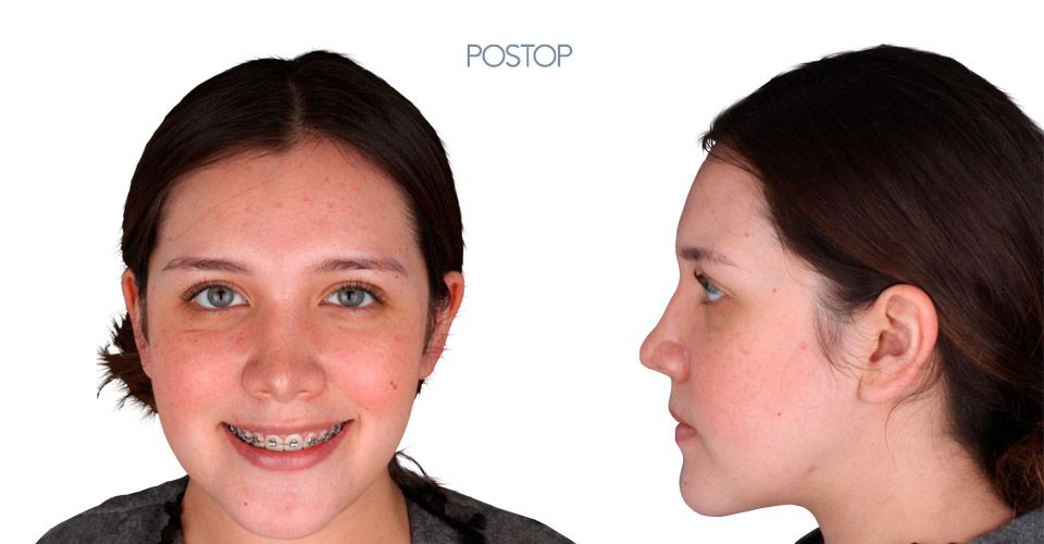 Postop orthognathic surgery case girl
