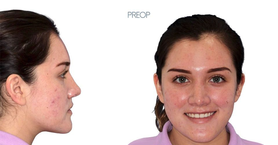 Preop orthognathic surgery case girl