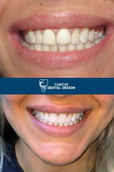 Before and after new smile patient