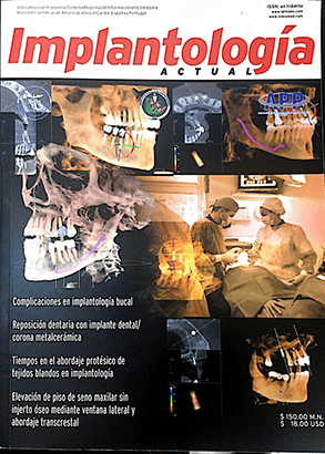Prosthetic Times - Actual Implatology Magazine - Dr Hugo Zamora CDD