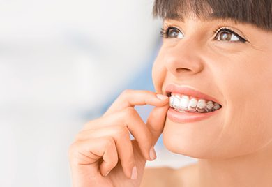 Invisalign braces in Mexico