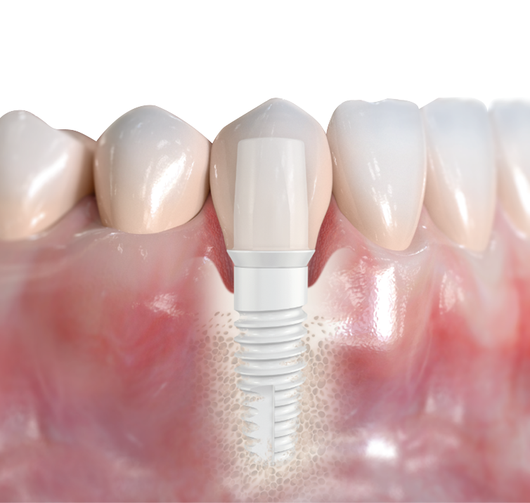 Affordable Dental Implants Mexico