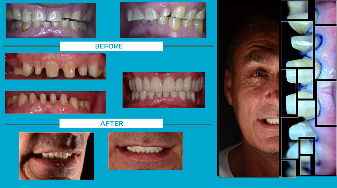 Cancun Dental Design Crowns Before and After In Mexico