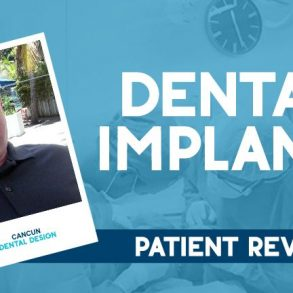 Dental implant Review
