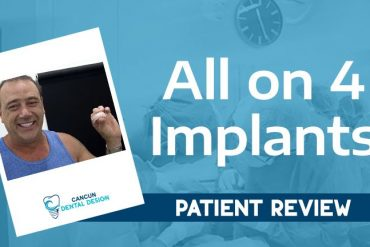 Mexico All on 4 dental implants Review
