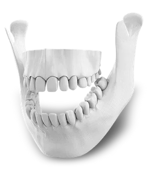 Orthognathic Surgery in Mexico