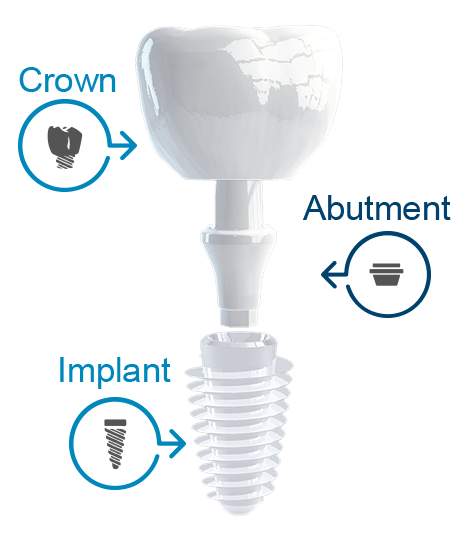 Parts of a dental implant HD