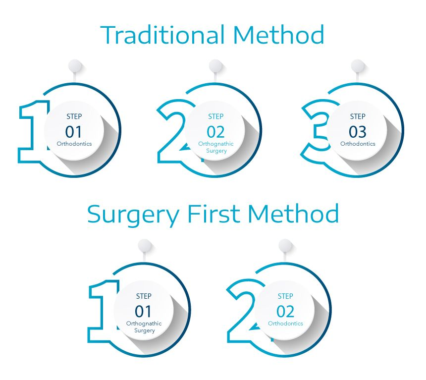 Surgery First Orthognathic Surgery