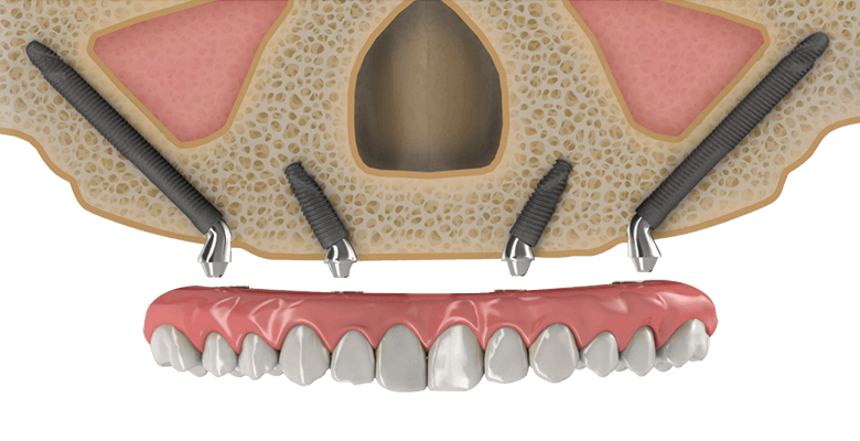 Zygomatic-Dental-Implants-in-Mexico