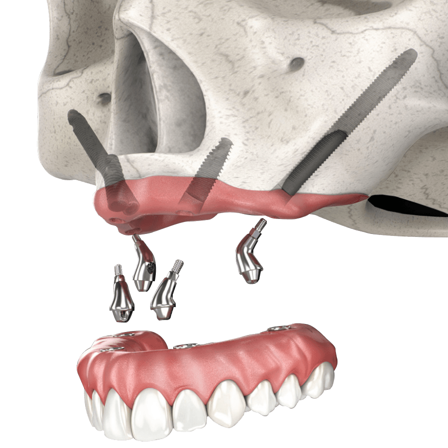 Zygomatic Implants Cost in Cancun Mexico