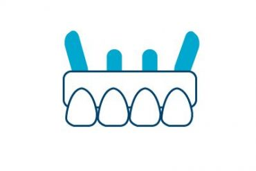 All on 4 Icon Cancun Dental Design