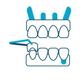 Full Mout Reconstruction Icon Cancun Dental Design