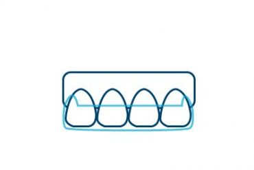 Invisalign Icon Cancun Dental Design