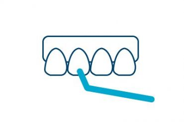 Scaling and Root planing Icon Cancun Dental Design
