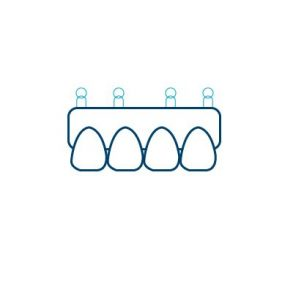Snap on Denture Icon Cancun Dental Design