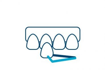 Veneers Icon Cancun Dental Design