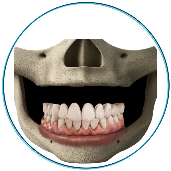 Zygomatic Implants in Cancun Mexico