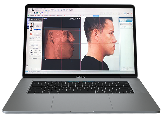 Orthognatic Jaw Surgery Digital Planning