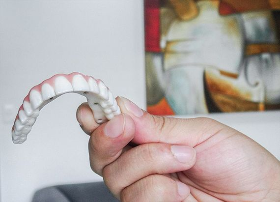 Real All-on-4 Zirconia Arch in Mexico