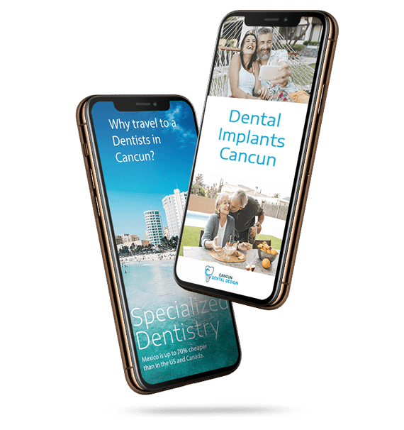Getting Dental implants in Mexico