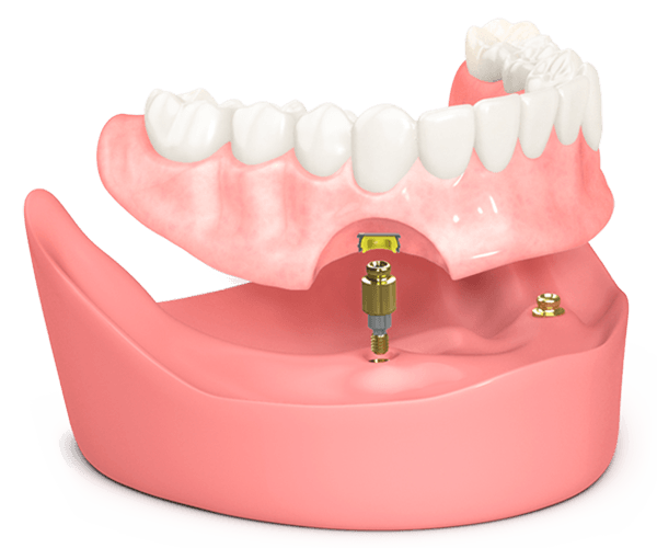 How Snap on Dentures Work
