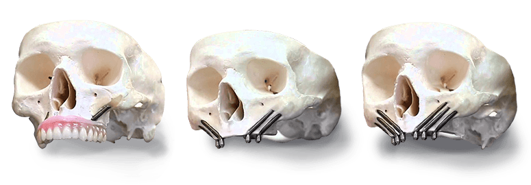 Real Zygomatic Implants in Mexico
