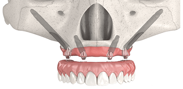 zygoma bone dental implants
