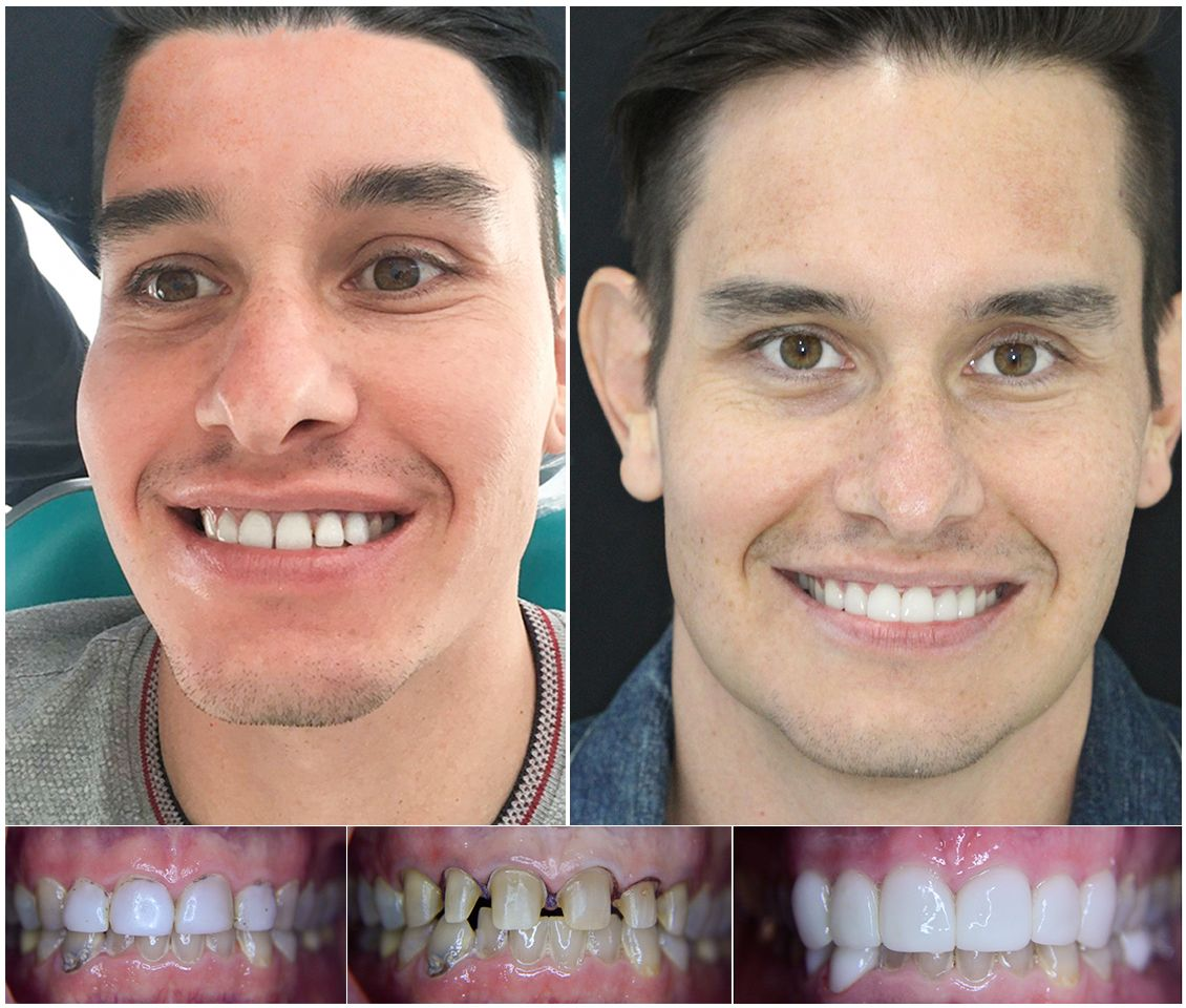 Before-After-Veneers-in-Mexico