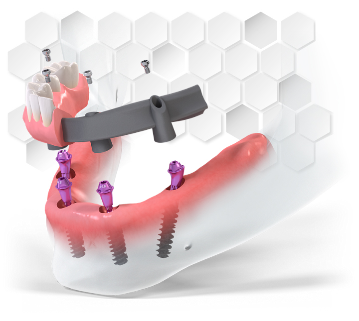 All-On-4™ dental implants Cancun