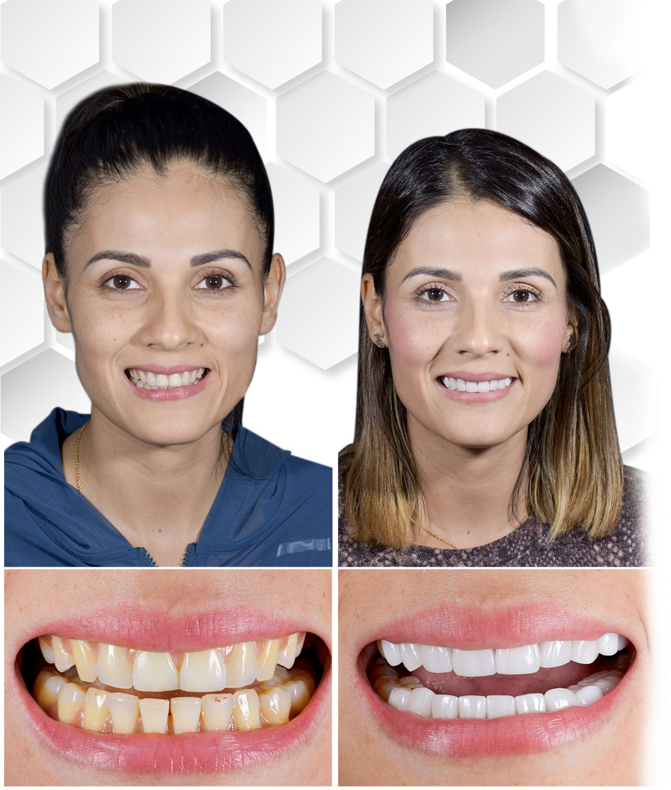 Before after teeth whitening Mexico