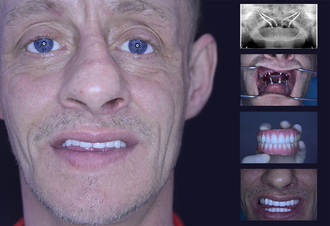 Before and After Zygomatic Implants CDD
