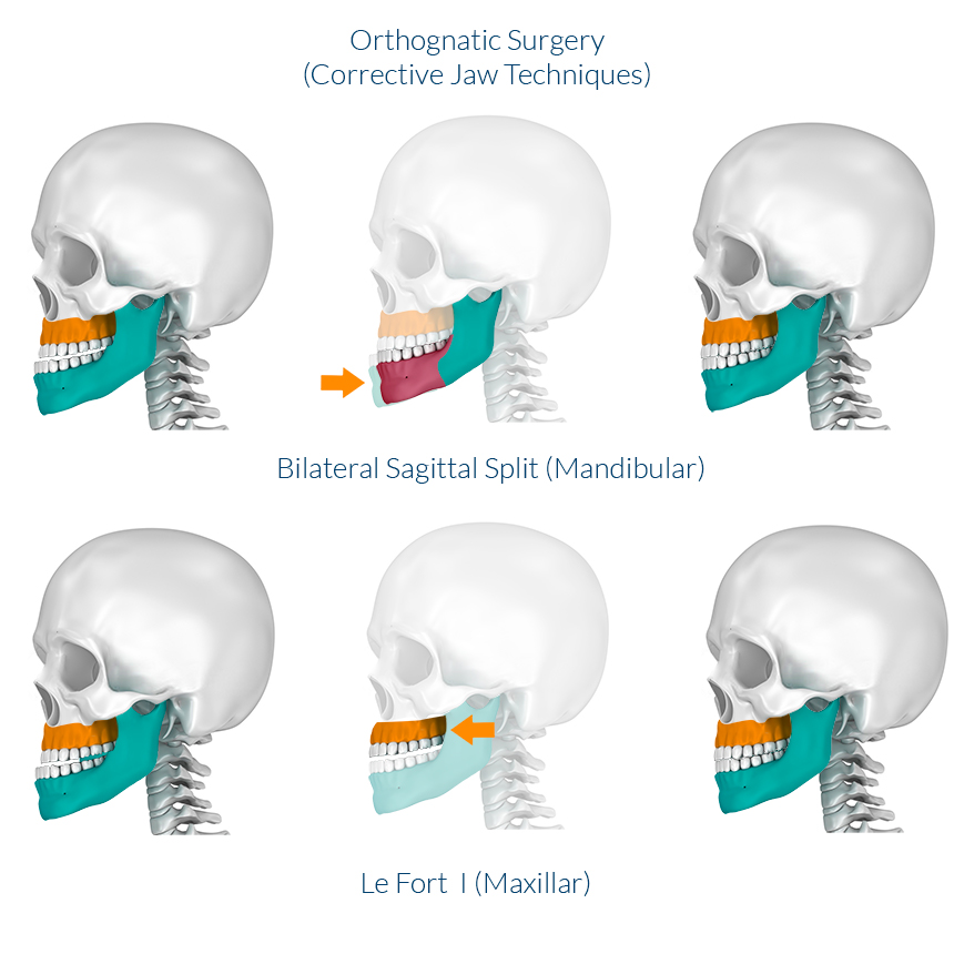 Orthognathic Surgeries Types