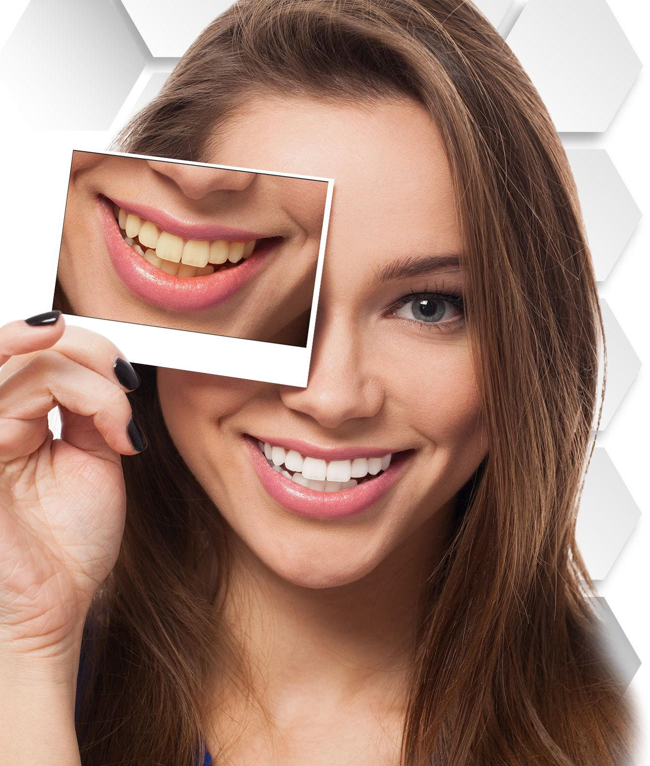 Teeth Whitening Cancun