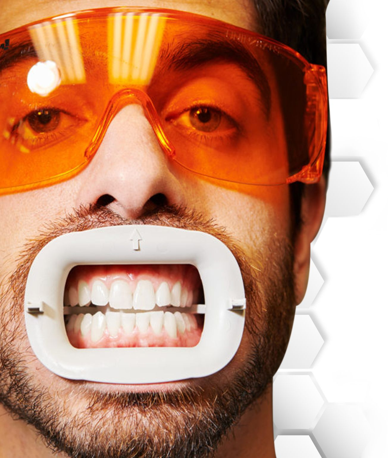 Teeth-Whitening-in-Mexico