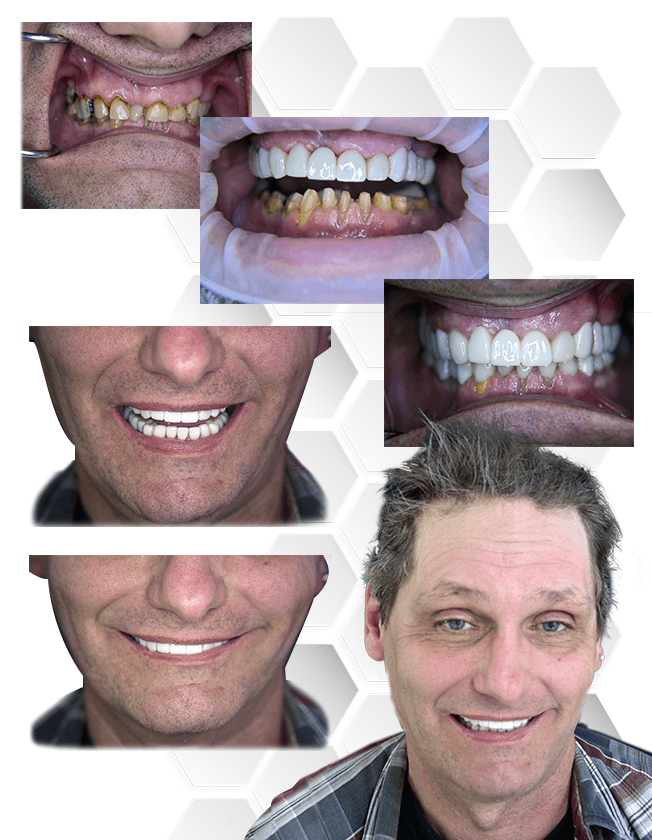 Full Mouth Reconstruction in Mexico