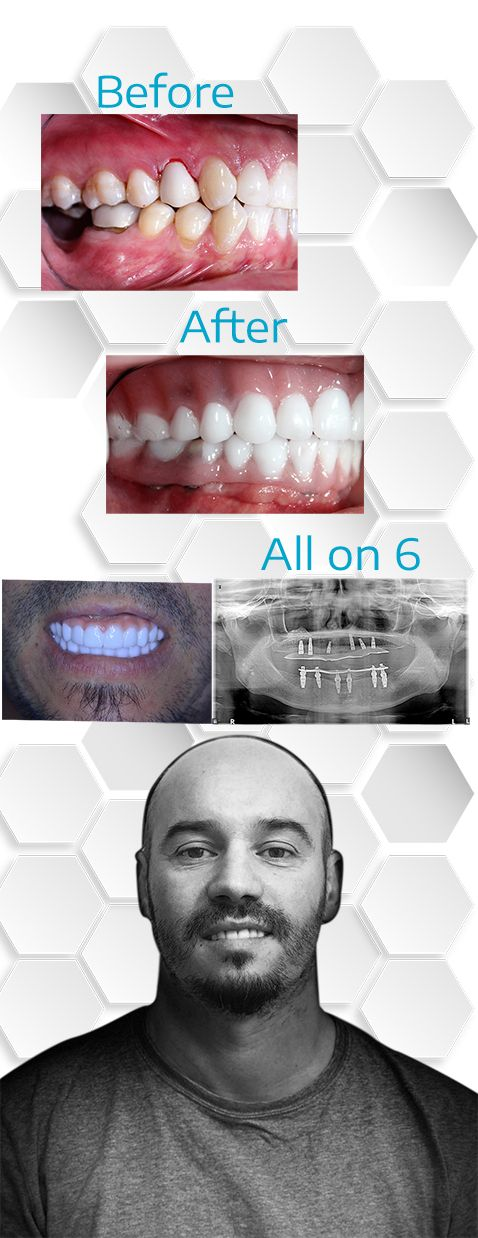 Full mouth Reconstruction All on 4 Mexico Before After