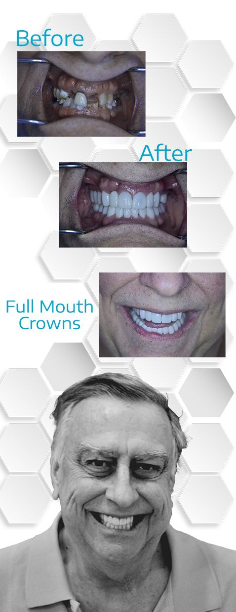 Full mouth crowns