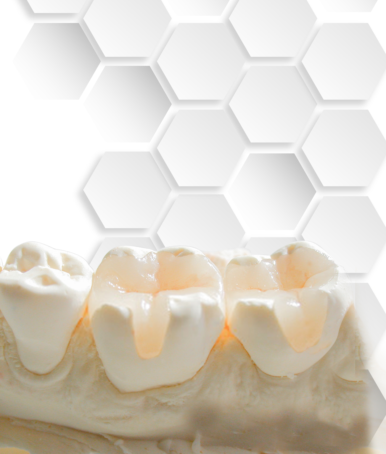 Root Canal Restoration Types