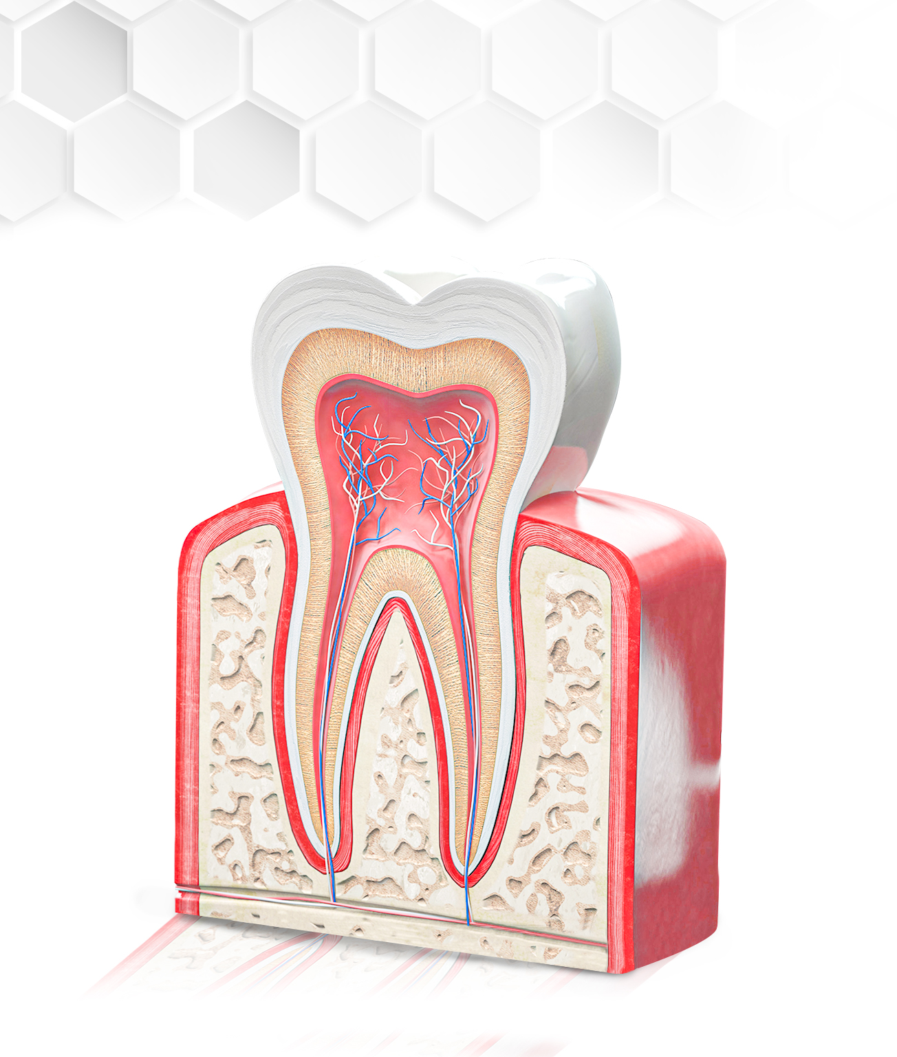 Root Canal in Mexico