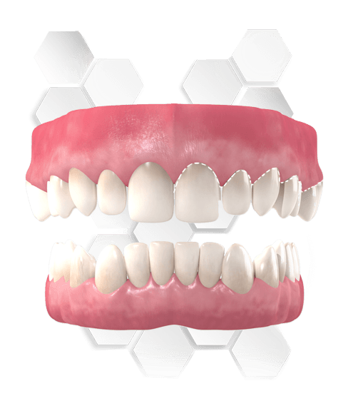 Full-Mouth-Reconstruction-in-Mexico
