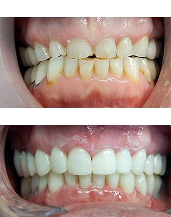 Smile makeover before and after for bruxism