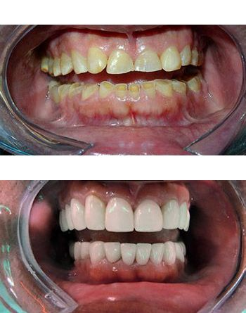 Smile makeover before and after loss of vertical