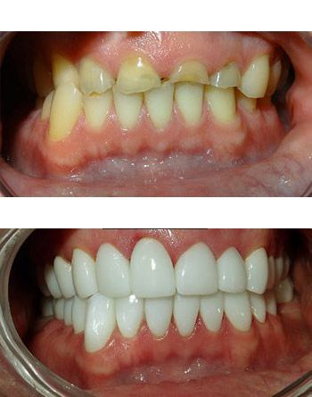 Smile makeover before and after severe maloculssion