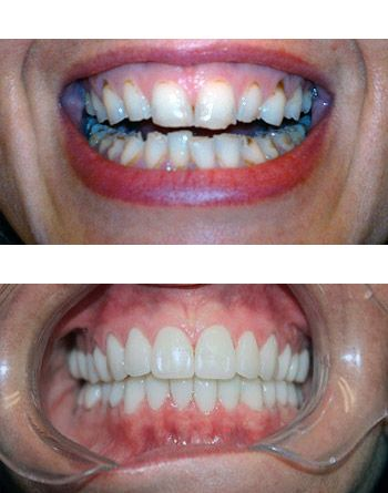 Smile makeover before and after for cosmetic porpouses