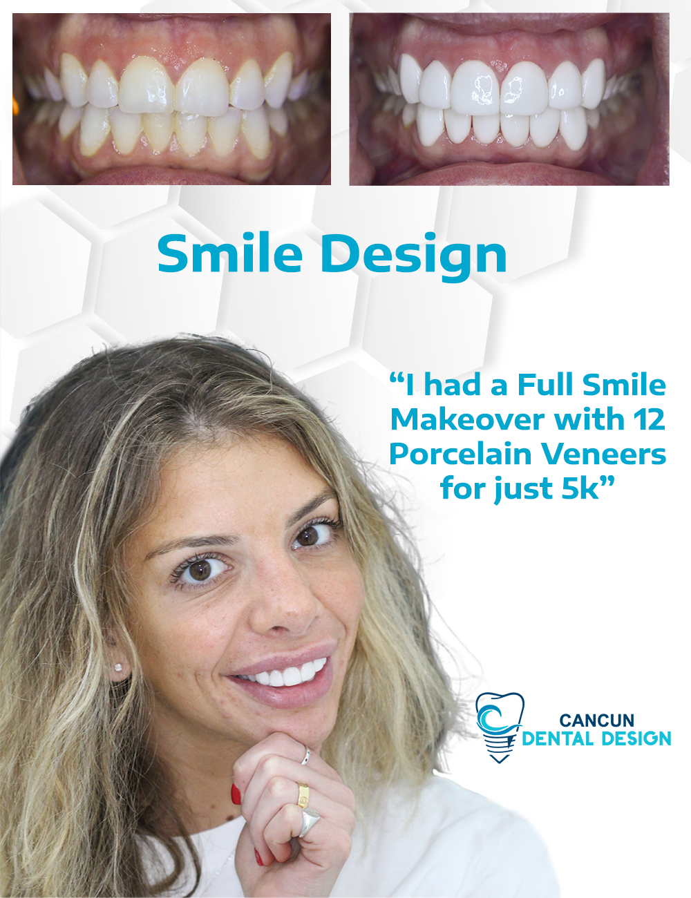 Before and after smile design