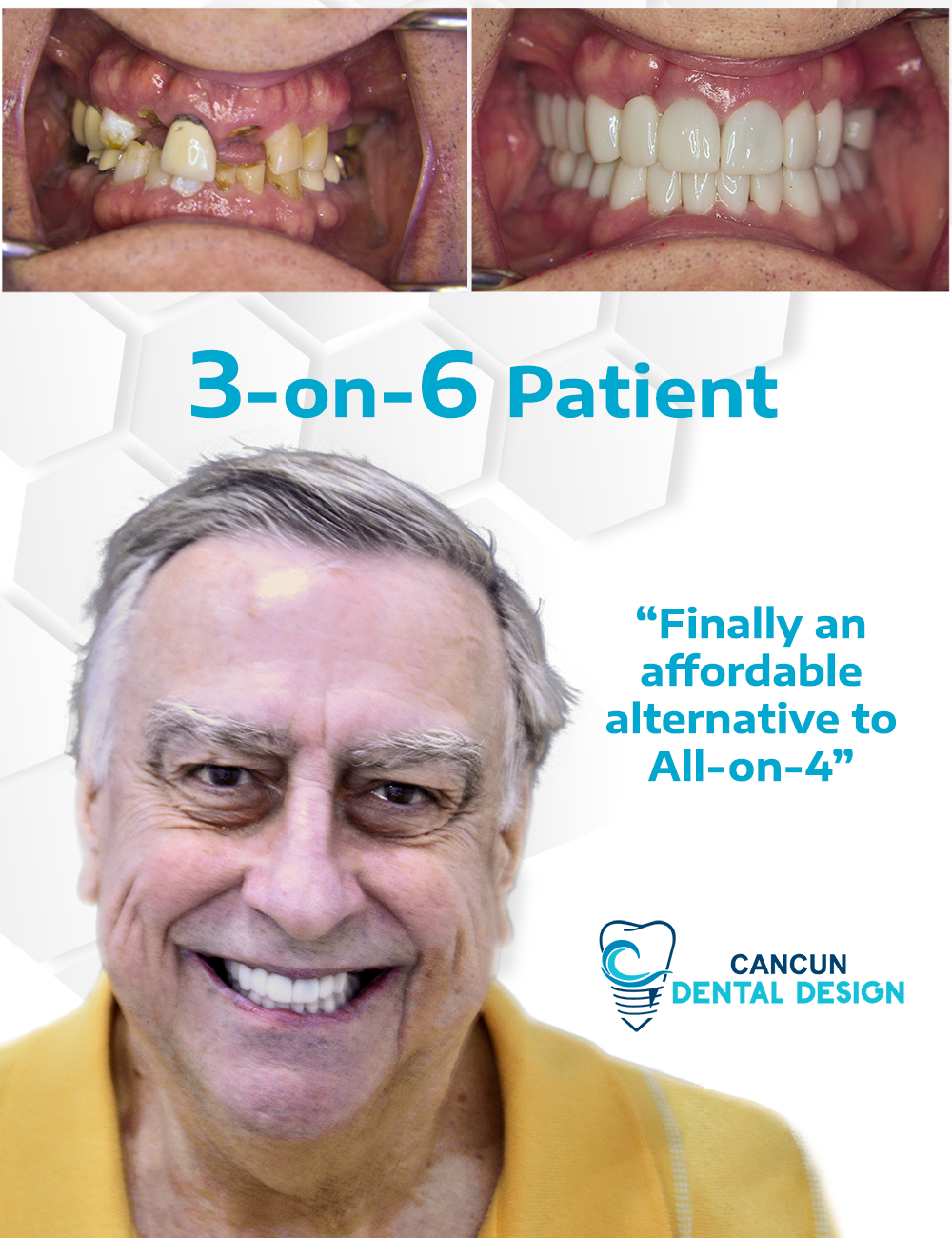 3 on 6 patient before and after